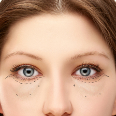 Eye bag removal