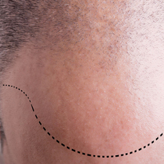 Hair transplantation - Strip method - 3,000 grafts