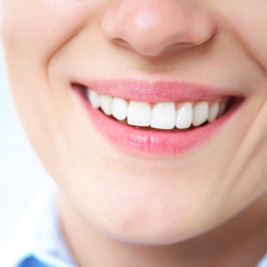 Tooth whitening - BrightSmile