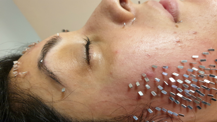 Facial Acupuncture 2